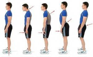 Kūno ir Raumenų Disbalansas SKATINA skausmus